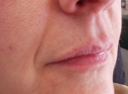 Faltenunterspritzung Nasolabial