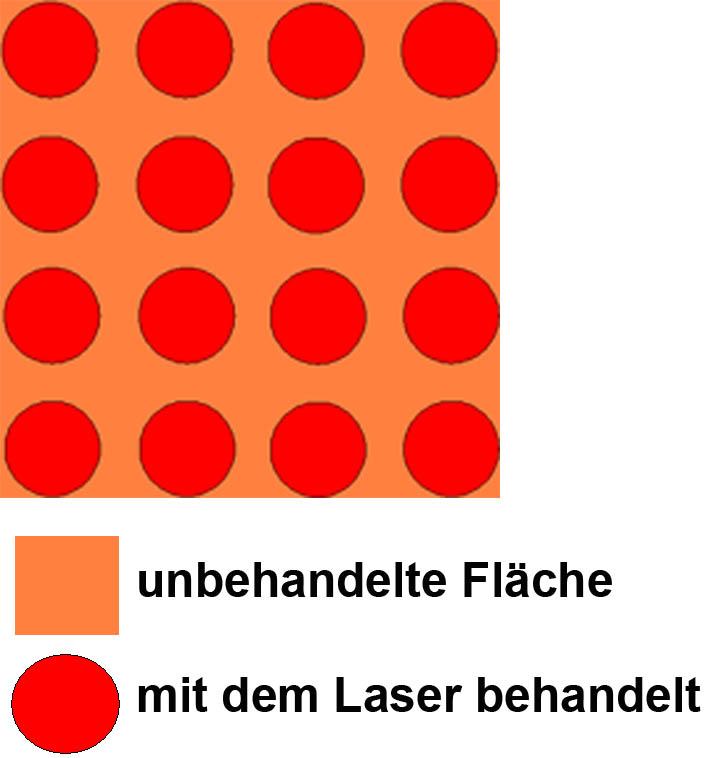 fraktionierte Lasertherapie