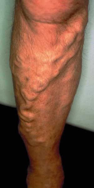 Krampfader am Unterschenkel