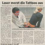 Tattooentfernung Tätowierungsentfernung Tatoentfernung